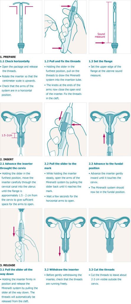 how to insert iud steps