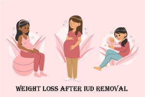 weight loss after iud removal